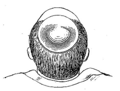 1898 'Capillary Chalice'